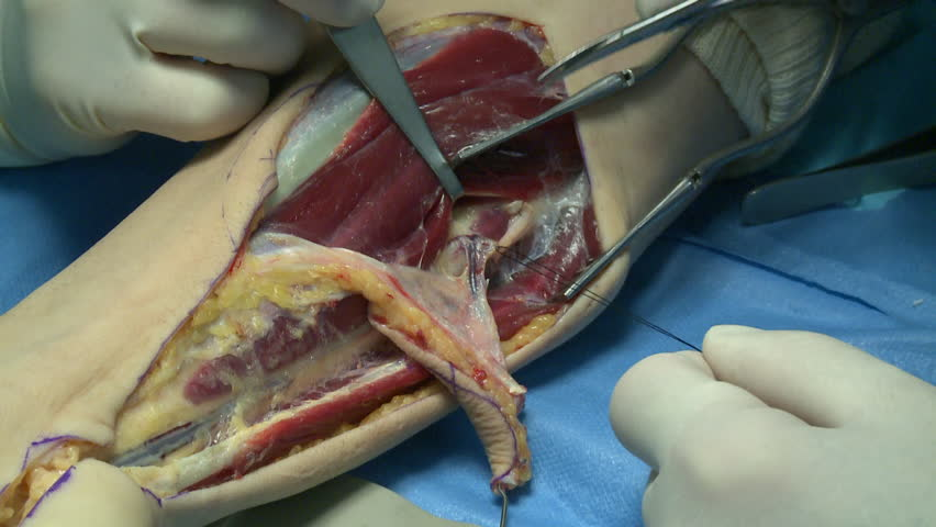 surgery in an operating room/cutting a suture of an artery