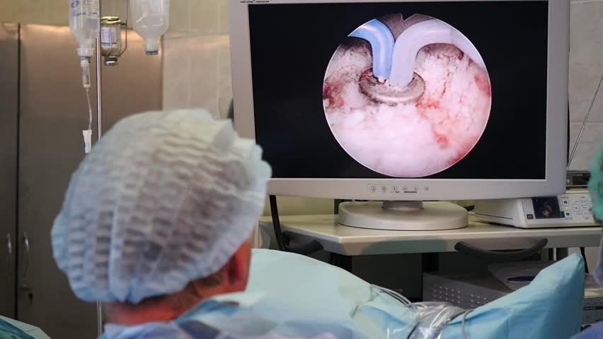 SAINT-PETERSBURG, RUSSIA, OCTOBER 2015: Surgeons performing prostate laser surgery, Full HD footage