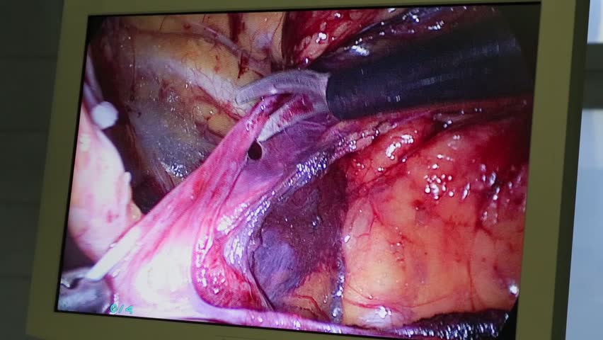 Display showing endoscopic surgery in abdominal organ