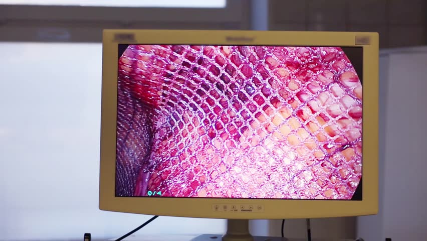 Screen showing endoscopic surgery with plastic of mesh in abdominal organ