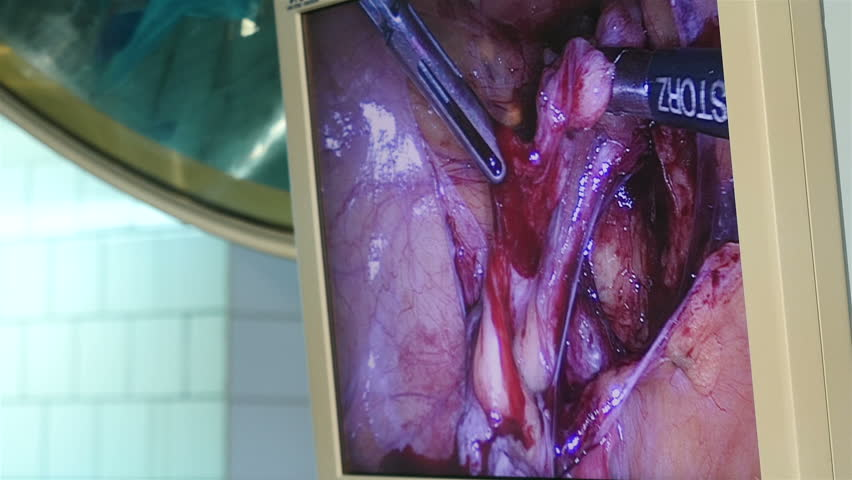 SAINT-PETERSBURG, RUSSIA, OCTOBER 2015: Laparoscopic surgery on the monitor in operation room, Full HD