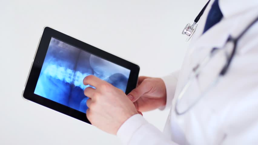 Professional doctor working with x-ray scan on tablet pc | Shutterstock HD Video #16035172