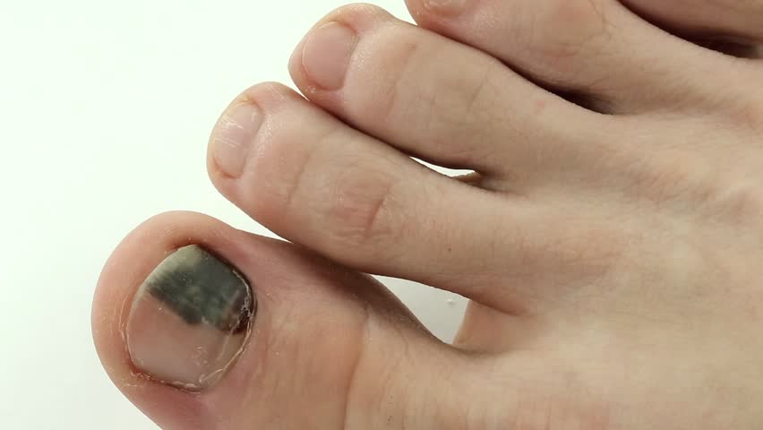 how to get blood from under toenail