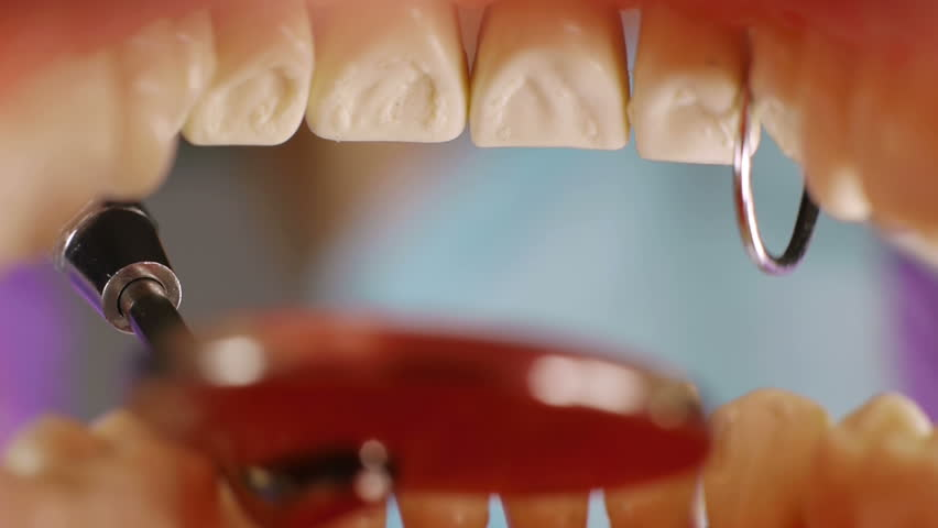Teeth Inside Mouth Cleanup (HD). Dentist cleaning teeth Inside mouth with hook remover tool and mirror. Shot with custom made mouth prosthesis.