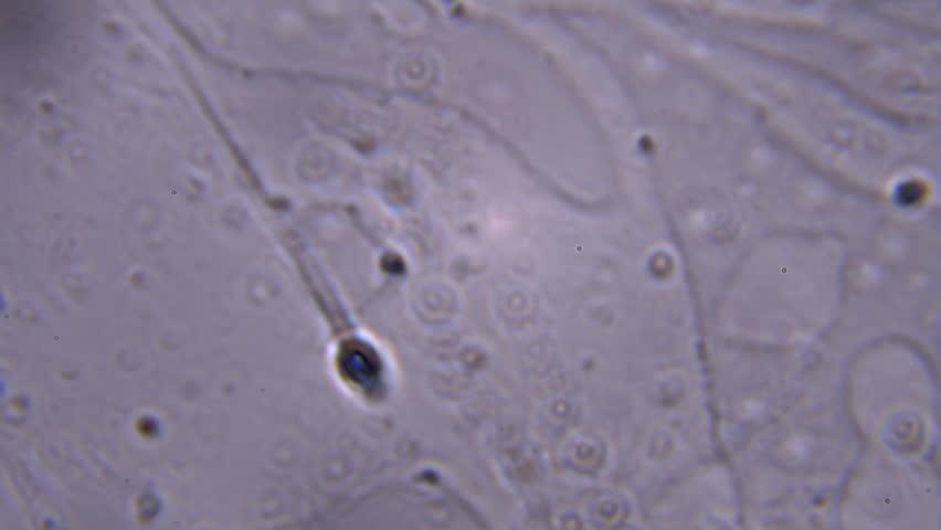 spermatozoidi-pod-mikroskopom-ne-shevelyatsya
