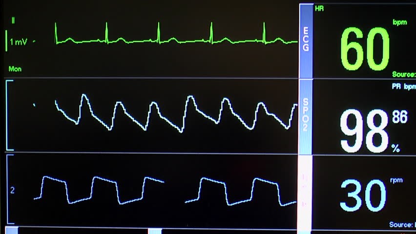 Close up of patient monitor displays vital signs - EKG, oxygen saturation (SPO2) respiration and blood pressure. | Shutterstock HD Video #2830822