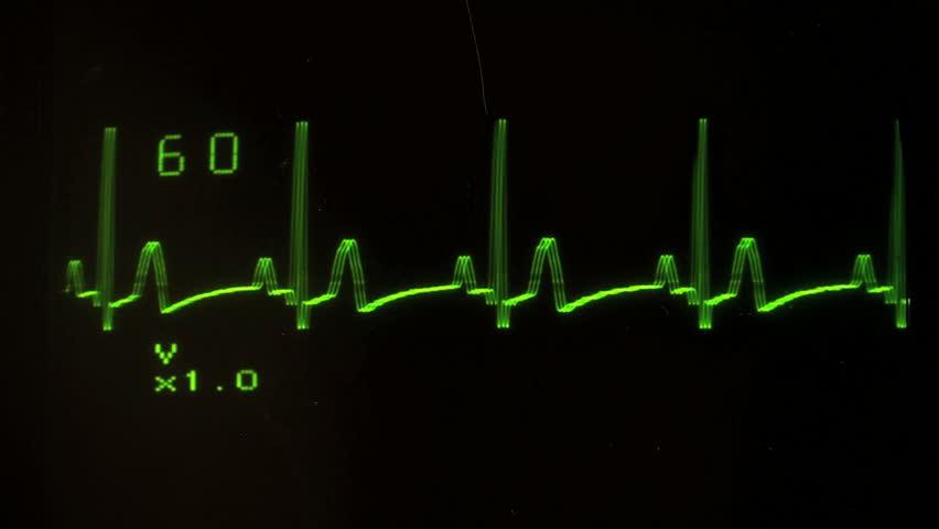 EKG defibrillator screen SEAMLESS LOOP - with sound, HD 1080 - HD stock video clip