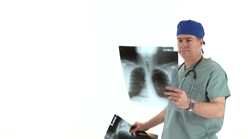 A doctor, dressed in scrubs, seems encouraged by the x-ray film he is evaluating. - HD stock footage clip