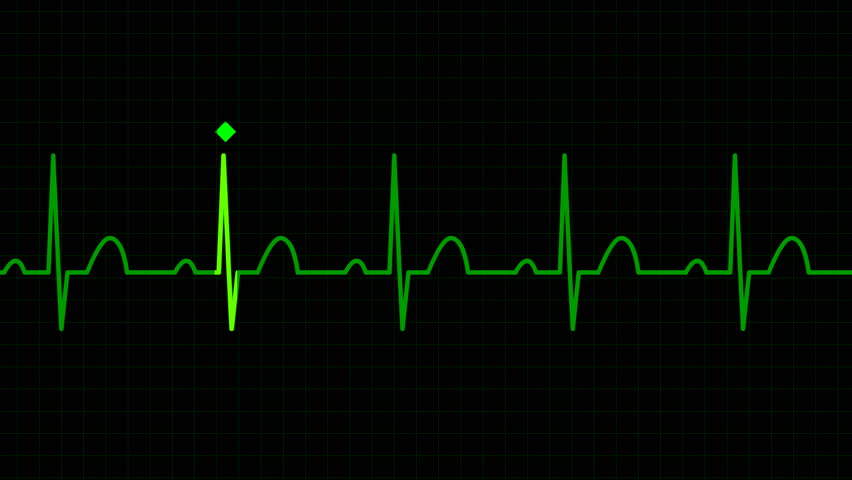 HD seamless loop physiologically accurate ECG EKG graph background. Electrical activity human heart. - HD stock footage clip