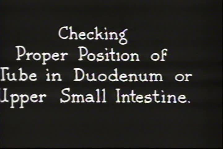 1930s - Doctors work on the gastro-intestinal part of the body in 1936. - SD stock footage clip