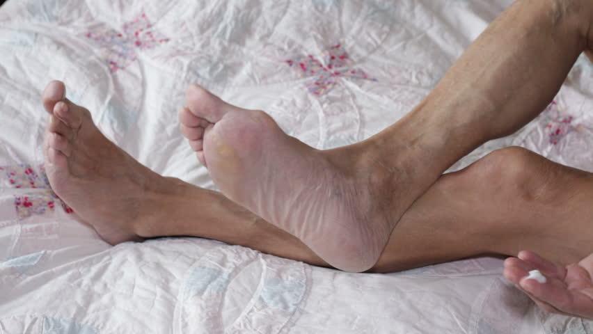 Senior man applying cream on his foot. - HD stock video clip