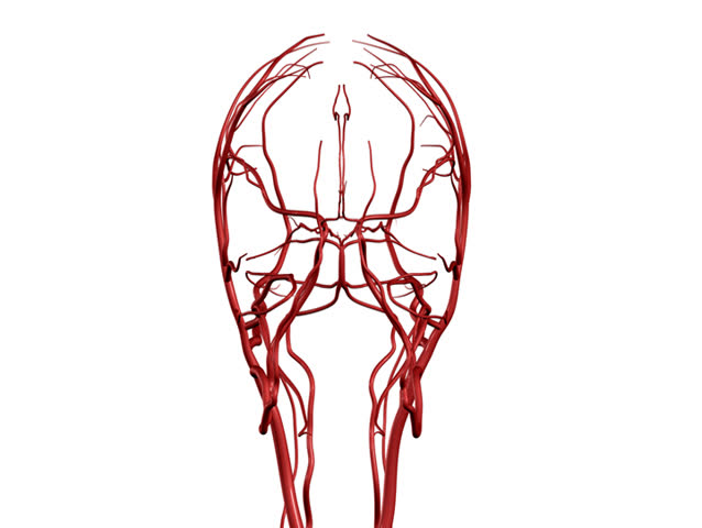 Brain Arteries NTSC