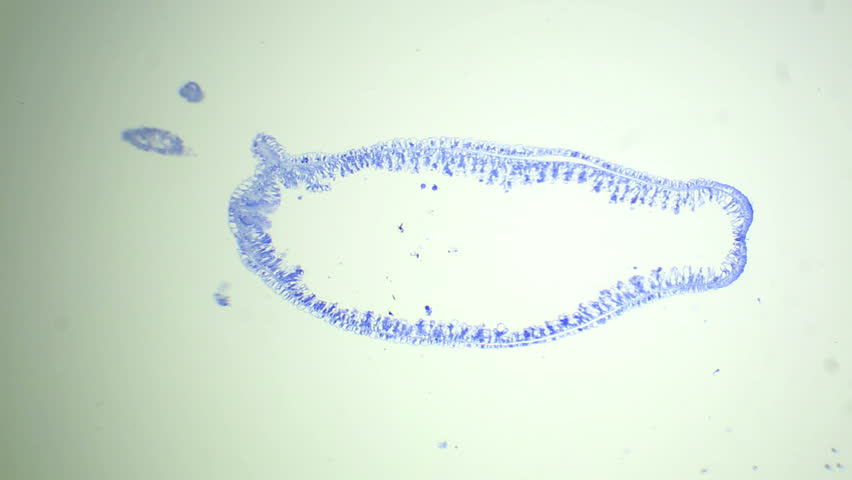 Longitudinal Section Of The Hydra Under The Microscope ...